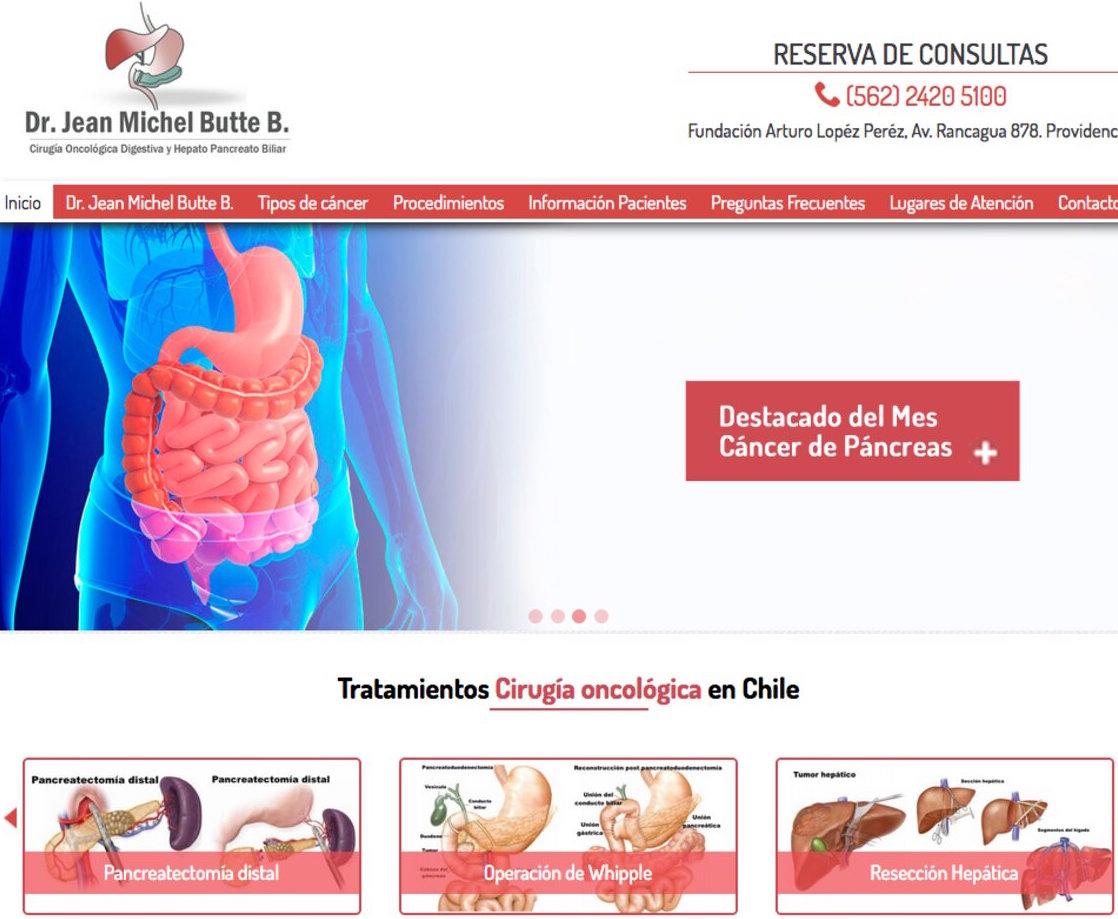 Dr. Jean Michel Butte, experto en la cirugía de cáncer de estomago